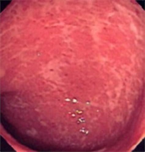 Blood In Stool Pediatrics by Managing Rectal Bleeding In Pediatric Patients