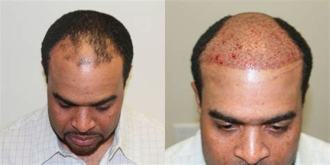 male hair transplant costs fue hair transplant before and after photos in florida