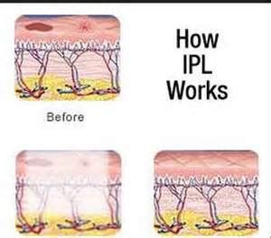 intense pulsed light tattoo removal ipl pulsed light hair removal removal