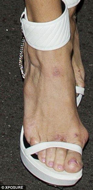 Brandi Glanville Bunions | brandi glanville another victim of shoe a cide t v s t