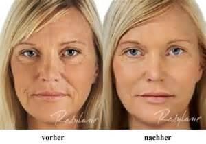 brustvergrößerung vorher nachher bilder brustimplantate fotos faltenbehandlung filler botox eigenfett gegen falten