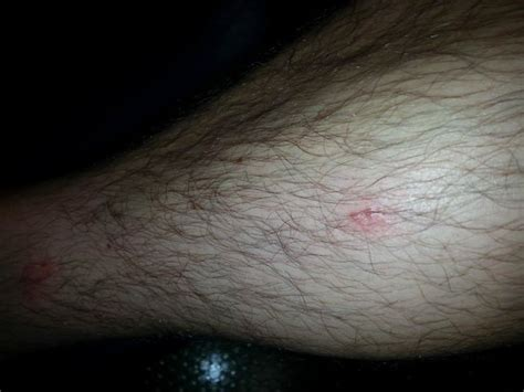 Bed Bug Bites On Legs by 301 Moved Permanently