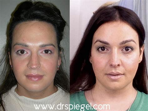 male to female after surgery transgender surgeries male to female popsugar beauty