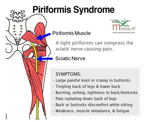 test piriforme learn the symptoms of piriformis get relief with
