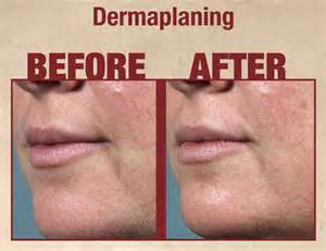 dermaplaning at home dermaplaning