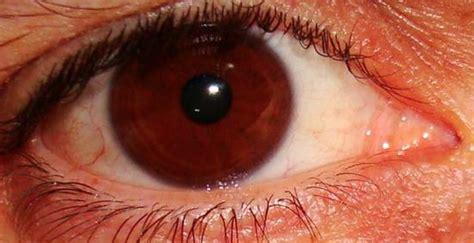 mosche volanti cause il disturbo agli occhi di puntini e mosche volanti le