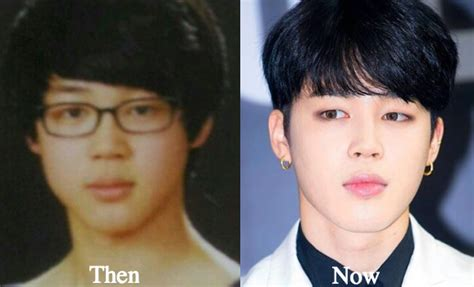 Bts Plastic Surgery | jimin plastic surgery bts before and after photos