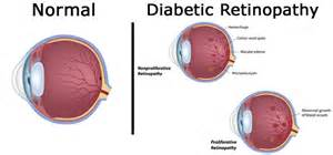 why does change blindness occur diabetic eye disease