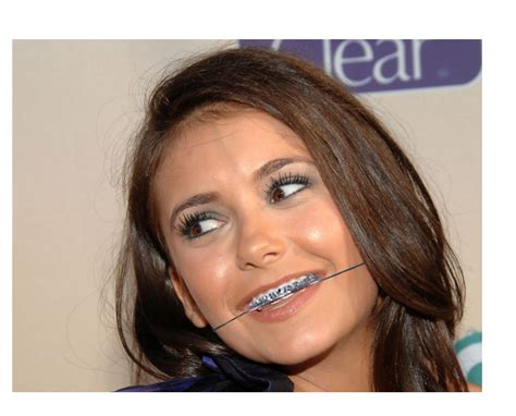 with braces with braces and headgear images