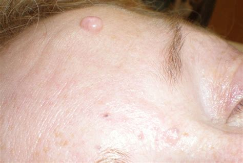 sebaceous cyst advanced cosmetic procedures for removal of skin blemishes