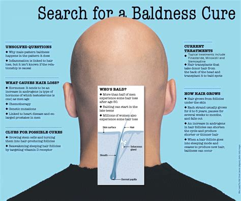 10 Tips On How To Cure Hair Loss by The Search For A Baldness Cure Stemoxydine Reviews