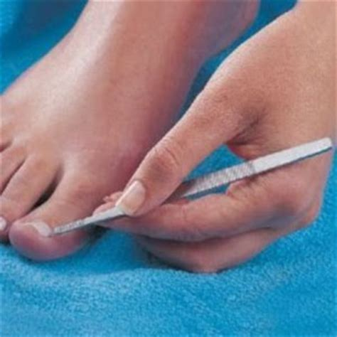 remove ingrown toenail ingrown toenail