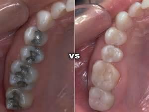 Fillings ? Amalgam vs Composite   Louisville Dentist
