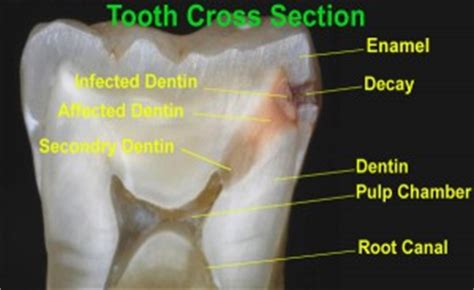 tooth decay cross section bmb dental clinic
