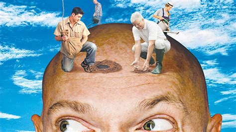 best hair transplant surgeons best hair transplant surgeon in the world