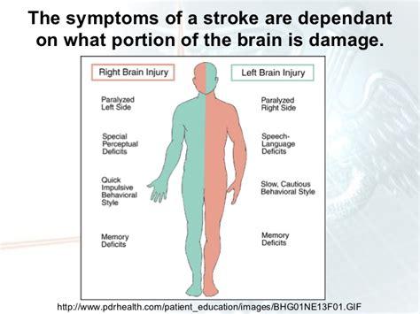 stroke symptoms stroke presentation ms