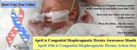 cdh and congenital diaphragmatic hernia awareness volume 1 books congenital diaphragmatic hernia day