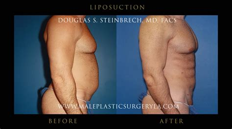 lipo section does health insurance cover liposuction in los angeles ca