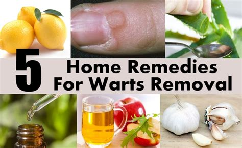 5 amazing home remedies for warts removal diy health remedy