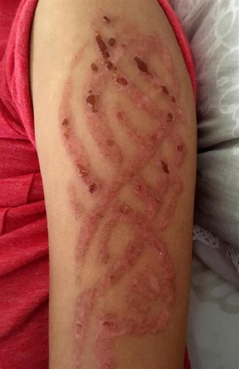 henna tattoo blisters henna allergic reaction leaves boy 7 with severe