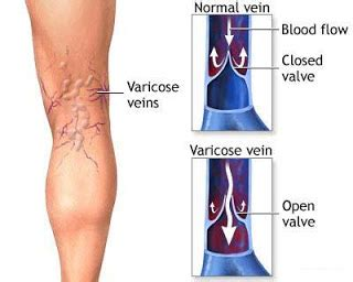8 Symptoms Of Varicose Veins by Healthy Style Habits Foods Fitness