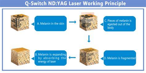 tattoo removal laser v6 aison international