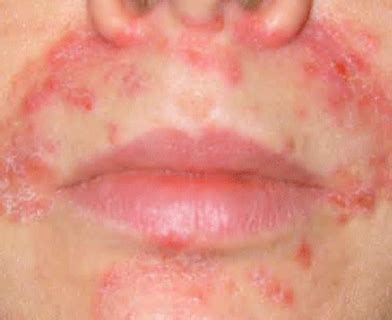 remedies for dry skin around mouth makeup and beauty brendonfuson author at cum face mature page 887 of 942