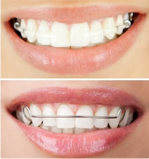 Dijamin Clear St Smile Clearbow Midlyne Orthodontic Laboratory