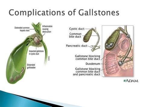 gallstones and gallbladder disease university of dr devendra sancheti gallstone disease