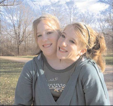 conjoined twins abigail and brittany hensel abby and brittany hensel engaged update