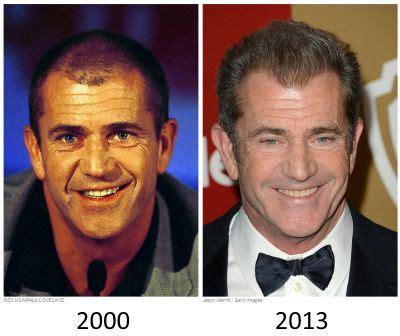 celebrity hair transplants before after mel gibson hair transplant before and after katona hair