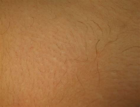 full brazilian hair removal the gallery for gt brazilian laser hair removal