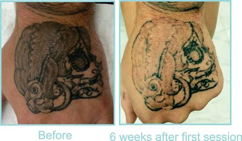 before and after removal at eraze laser clinic 6