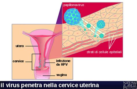 pap test e papilloma virus paptest e hpv violetab