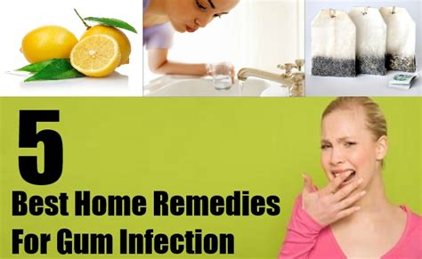 best medicine for inflammation best medicine for inflammation 5 best home remedies for