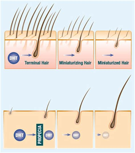 dht dihydrotestosterone what is dht s role in baldness thinking of stopping propecia and still considering a hair