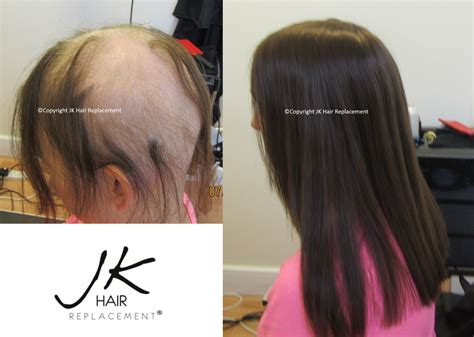 new technology in hair restoration 2014 gallery women s results jk hair replacement