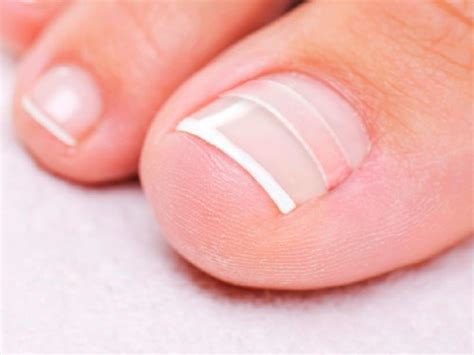 Toe Nail Care by Curvecorrect Ingrown Toenail Home Treatment 11street