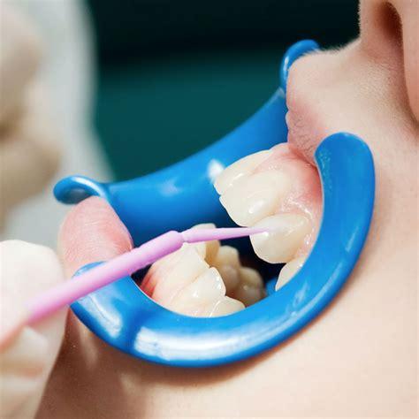 comfort dental delaware complete comfort dental channahon il 60410