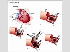 Healthy U: Heart Valve Replacement Surgery Heart Bypass Complications