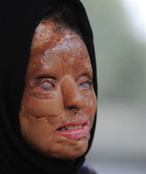 Has Disfigured Eyelids by India Acid Attack Victim Fights Back The Japan Times