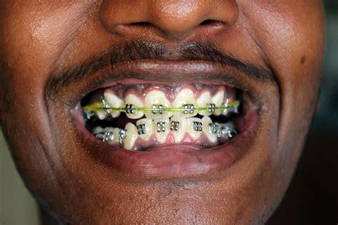 best braces dental braces