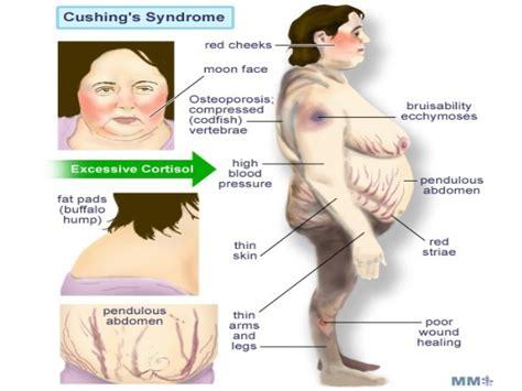 cushing s cushing s 1