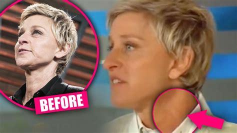 celebrity neck lift plastic surgery secret top docs claim ellen degeneres had