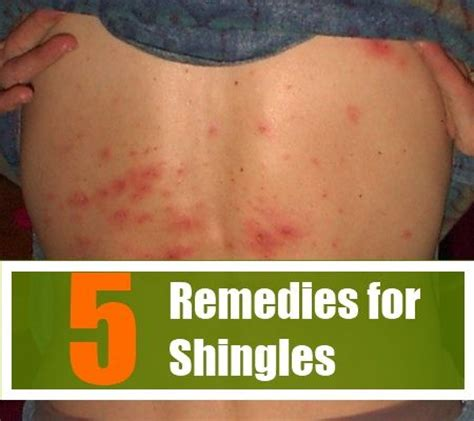 1000 images about home remedy on sinus