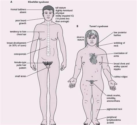 pubic hair pouch klinefelter syndrome x turner s trials pinterest