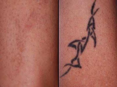 tattoo removal rochester ny rethinking ink laser removal helendale dermatology