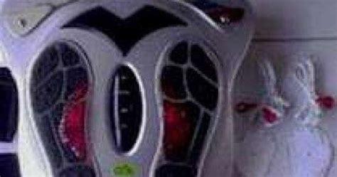 Bola Duri Magnet Besar Bola Terapi Kesehatan Limited pijat refleksi dan akupuntur pijaten