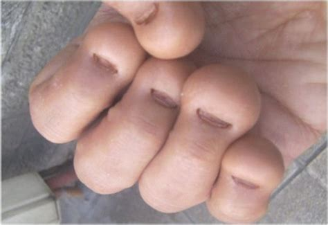 Do You Bite Your Nails by Acrylic Nails Finally Stop The Nail Biting Habit