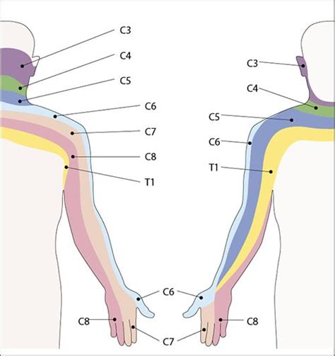 best 25 radiculopathy ideas on neck remedies pinched nerve treatment and
